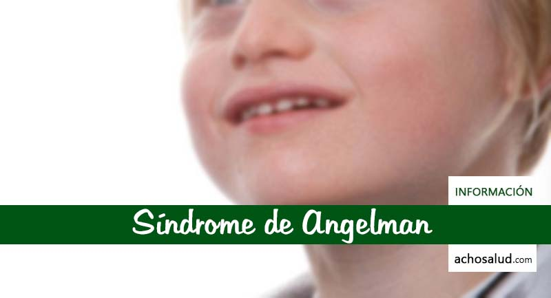 Síndrome de Angelman Fotos