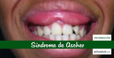 Síndrome de Ascher