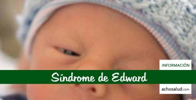 Síndrome de Edward