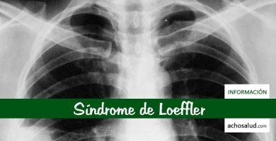 Síndrome de Loeffler