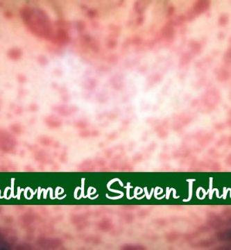 Síndrome de Steven Johnson