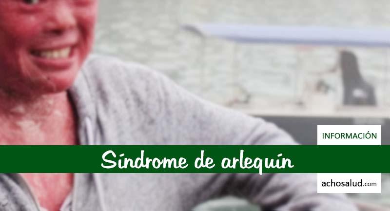 Síndrome de arlequín